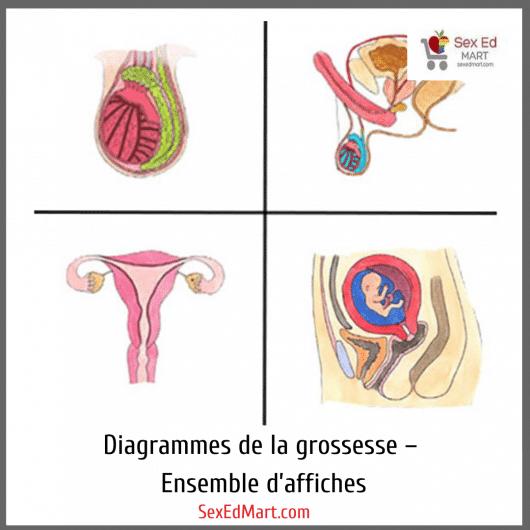 Diagrammes de la grossesse – Ensemble d'affiches